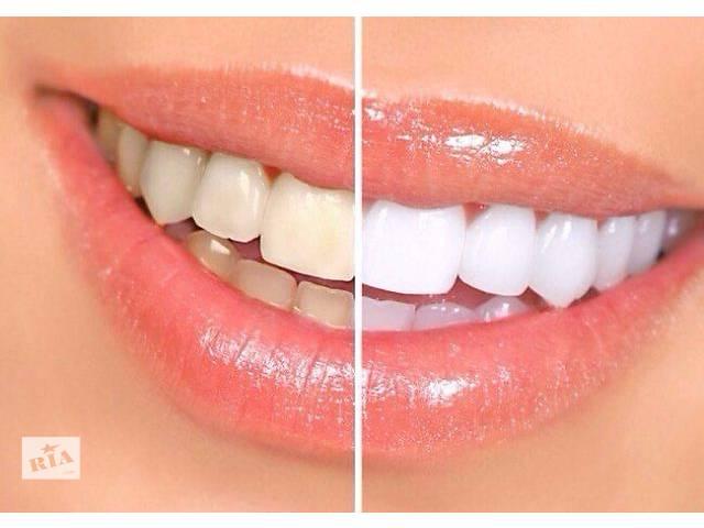 бу Профессиональная чистка зубов ультразвуком в Броварах